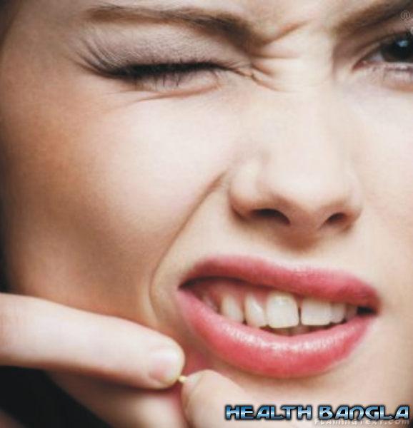 Acne-pimple