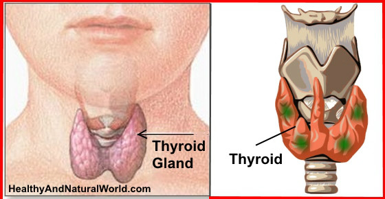 Thyroid Gland Problem